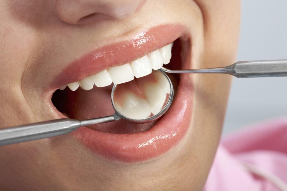 Rodzaje implantów zębowych - kluczowe informacje